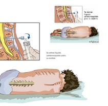 Ilustraciones casos clínicos. Um projeto de Ilustração de Veronica Ortiz Risco         - 07.10.2013